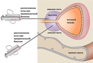 transrektalnaya-biopsiya--prostaty